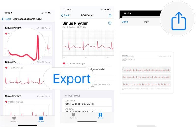 To share the data with your doctor, choose the ECG reading you'd like to share, then tap Export a PDF for your doctor. Choose the share button, then method to share.