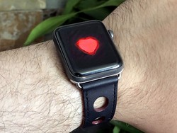 Apple Watch may have saved another life