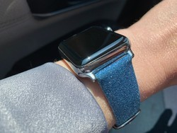 CASETiFY Apple Watch Bands review: Spoiled for choice